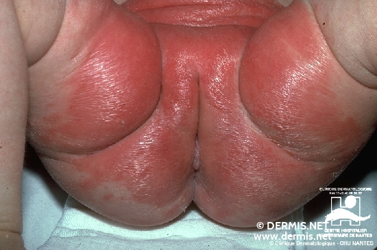 diagnosis: Diaper Dermatitis