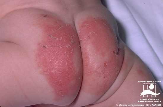 Diagnose: Acrodermatitis enteropathica