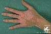 diagnostic: Vitiligo