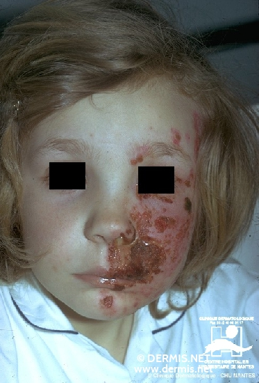 diagnosis: Herpes Zoster