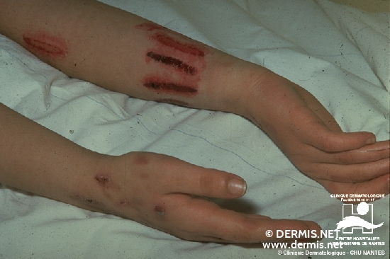 diagnosis: Factitial Dermatitis