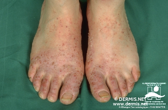 diagnostic: Eczéma dyshidrotique