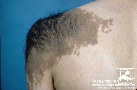 diagnosis: Becker's Nevus