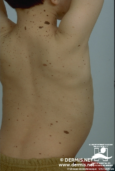 diagnosis: Hereditary Dysplastic Nevus Syndrome