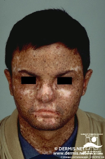 Diagnose: Xeroderma pigmentosum