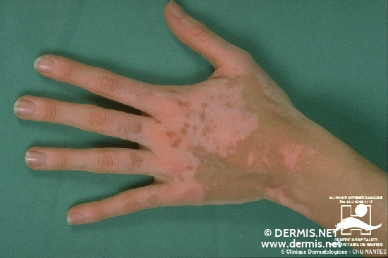 Diagnose: Vitiligo