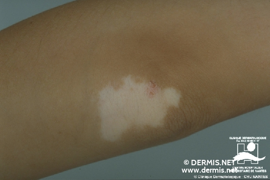 diagnosis: Vitiligo