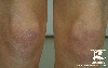 localisation: knee, diagnosis: Dermatomyositis
