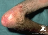 Diagnose: Dermatomyositis
