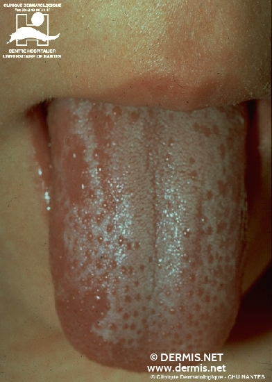 diagnosis: Scarlet Fever
