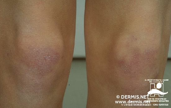 localisation: knee diagnosis: Dermatomyositis