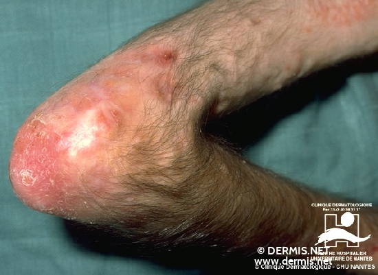 diagnostic: Dermatomyosite