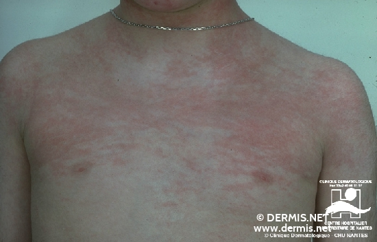 diagnosis: Dermatomyositis