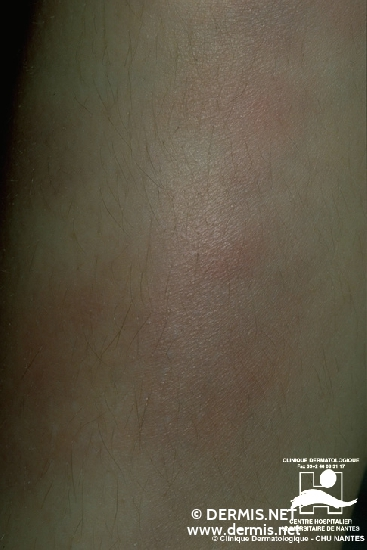 Diagnose: Erythema nodosum
