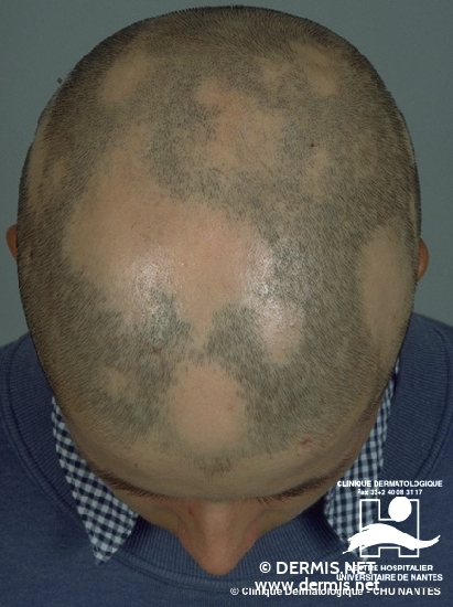 Diagnose: Alopecia areata