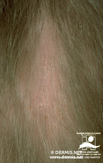 diagnosis: Alopecia Mechanica