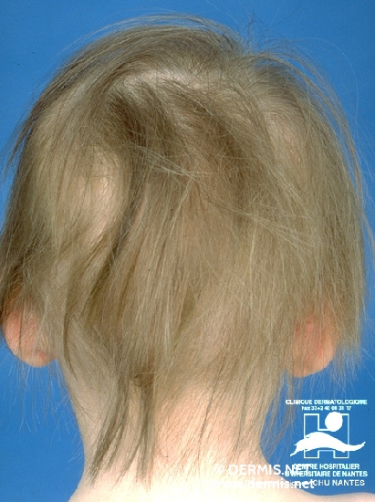 Diagnose: Alopecia mechanica