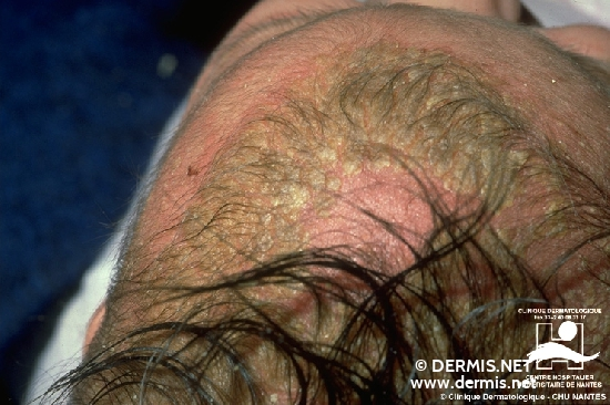 diagnosis: Seborrheic Dermatitis