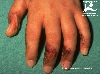 diagnostic: Phytodermatitis, Dermatite photoxique de contact