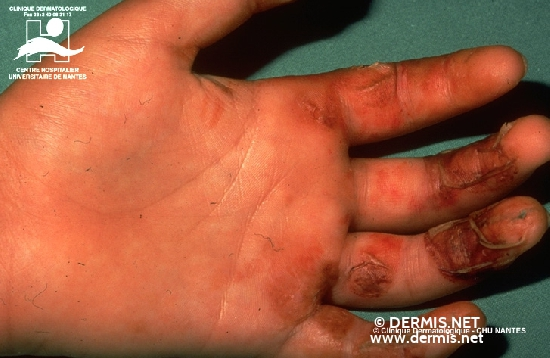 diagnosis: Phytophotodermatitis Phototoxic Contact Dermatitis