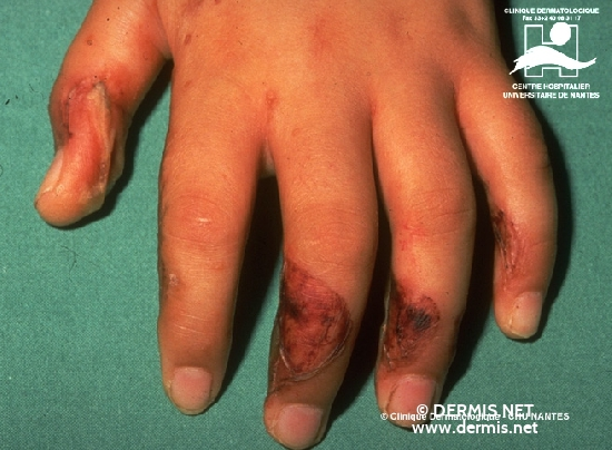 diagnostic: Phytodermatitis Dermatite photoxique de contact