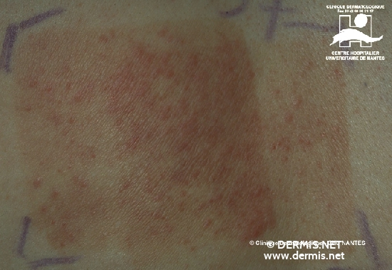 diagnosis: Photoallergic Contact Dermatitis