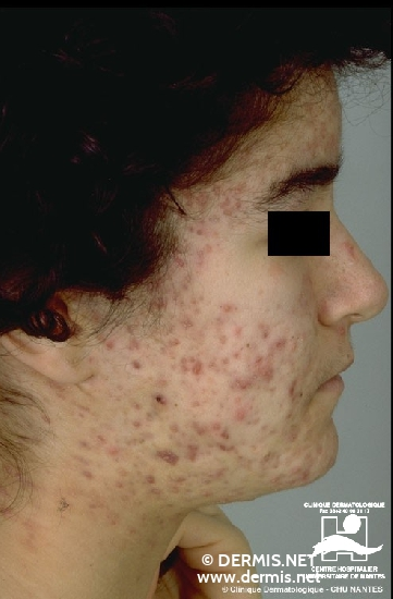 diagnosis: Acne Cystica