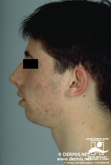 diagnostic: Acne Vulgaris