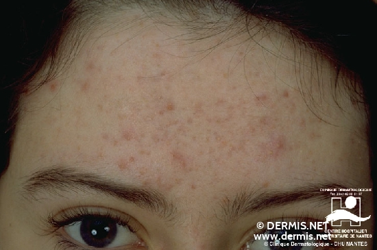 diagnosis: Acne Comedonica