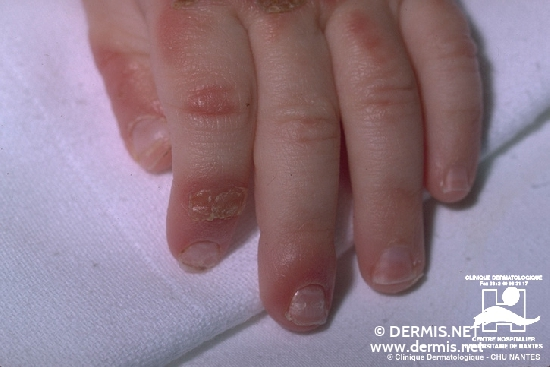 diagnóstico: Acrodermatitis enteropática
