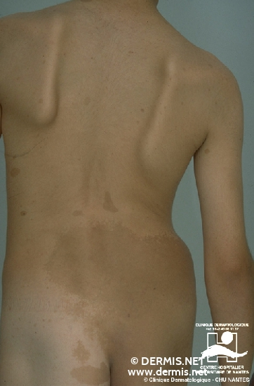 diagnostic: Neurofibromatose