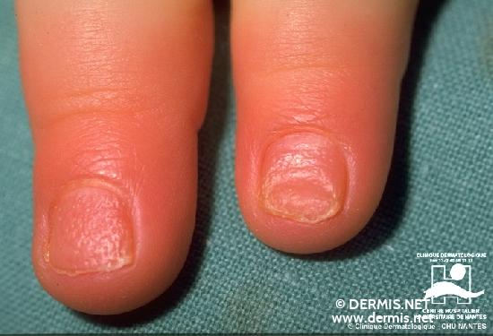 diagnosis: Psoriasis Vulgaris, Nail Changes Koilonychia