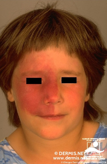 diagnosis: Port-Wine Stain Sturge-Weber Syndrome