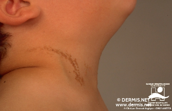 diagnosis: Epidermal Nevus