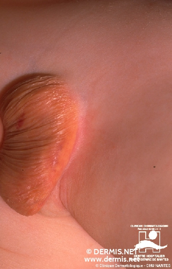 Diagnose: Xanthogranuloma juvenile