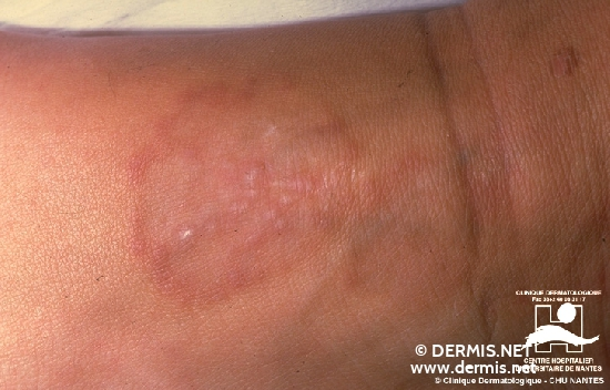 Diagnose: Granuloma anulare