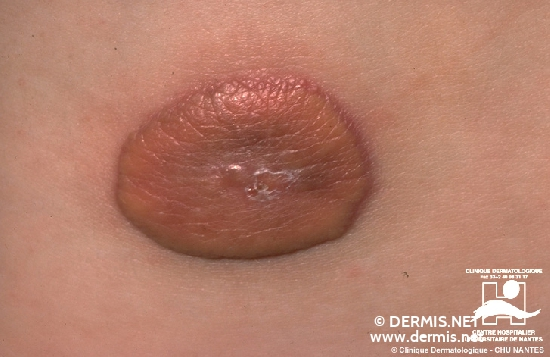 diagnosis: Juvenile Xanthogranuloma