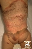 Tanı: Giant Melanocytic Nevus