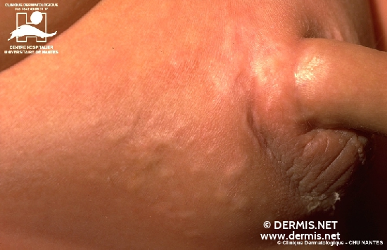diagnosis: Connective Tissue Nevus