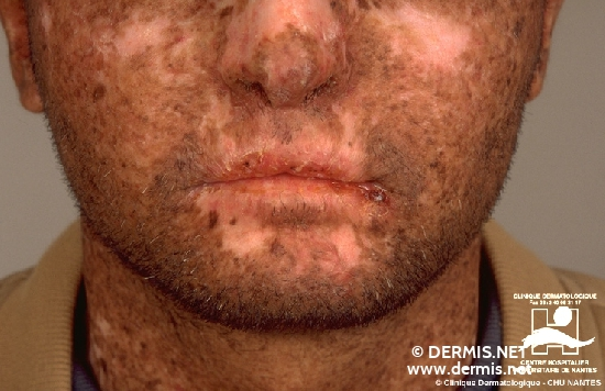 diagnostic: Xeroderma Pigmentosum