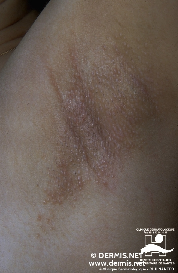 localisation: axilla diagnosis: Hidradenitis Suppurativa