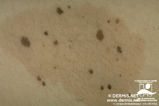 diagnostic: Nevus Spilus