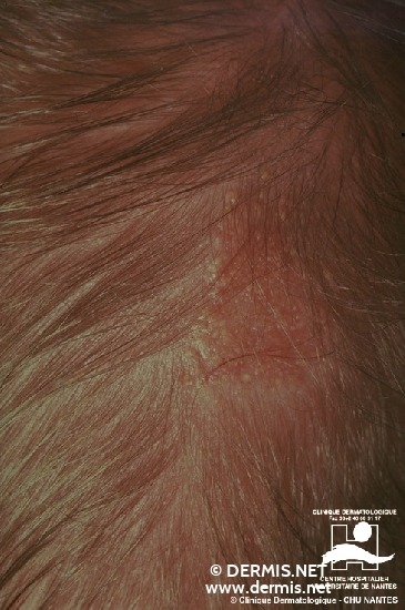diagnosis: Nevus Sebaceous of Jadassohn