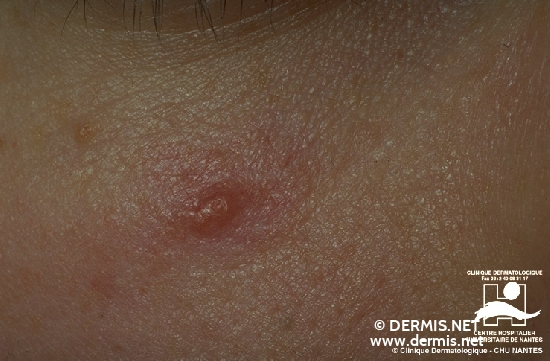 diagnosis: Leishmaniasis