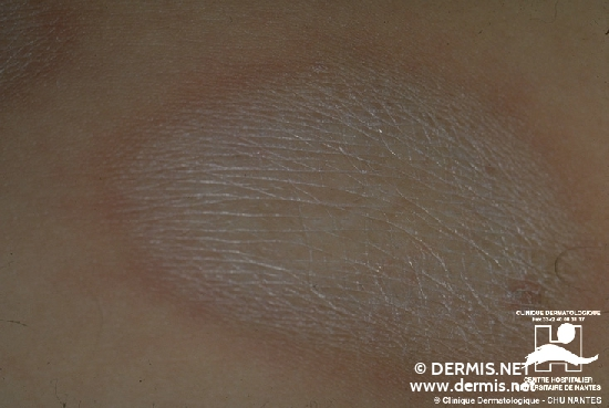 diagnostic: Morphea