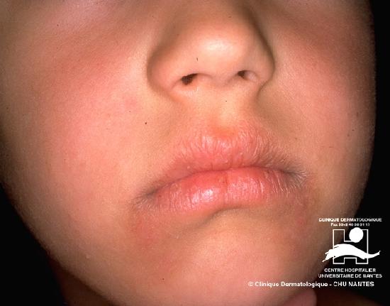 ichthyosis simplex