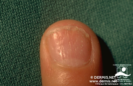 diagnostic: Modifications unguéales au cours du psoriasis