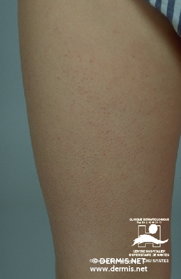 diagnosis: Keratosis Pilaris