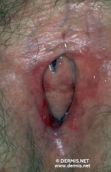 diagnosis: Lichen Planus of the Mucosa, Erosive