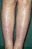 diagnostic: Myxoedema, Pretibial